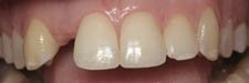 Prosthodontic Implants Before