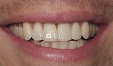 Prosthodontic Implants After