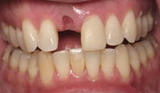 Prosthodontist Implants Before