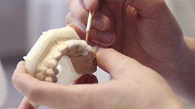 Complete dentures.